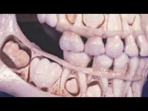 La inestabilidad de los tratamientos vértebras cervicales