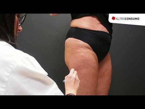 Creme cellulite: funzionano davvero? I test in laboratorio