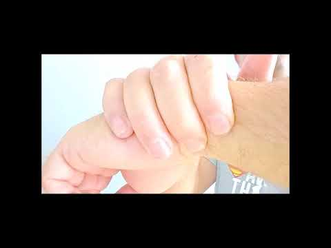 Schäden an den Gelenken der Hände zu entfernen