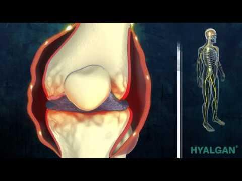 Tratamiento de la osteoartritis de la República Checa
