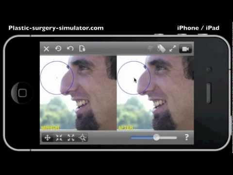 Video of Plastic Surgery Simulator Lite