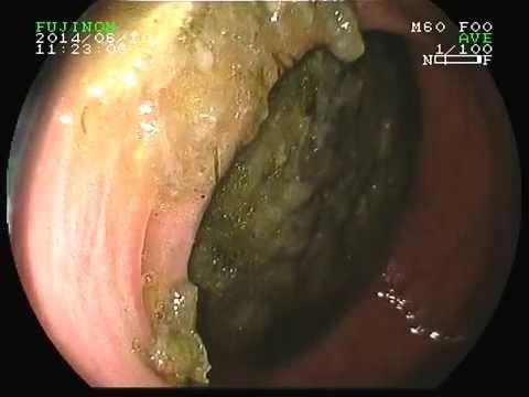 Дуоденостаз. Синдром верхней брыжеечной артерии.дуоденальная непроходимость.  синдром Wilkie.