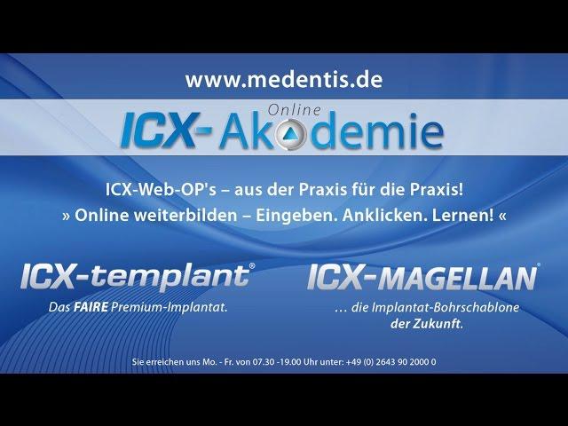 27 Meinungen von Ärzten zum ICX-templant System