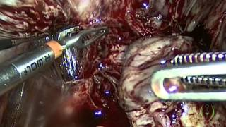 Laparoscopic Management of Severe Endometriosis