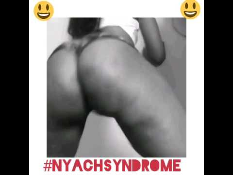 #Nyachsyndrome: This is what happen when you watch girl twerk