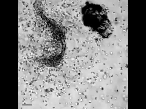 La photo des bactéries des parasites