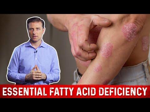 O que é o eczema viral