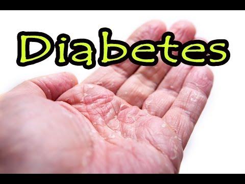 Istoricul medical al pacientului cu diabet zaharat