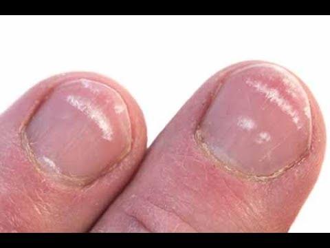 Los indicios del hongo de la planta de los pies