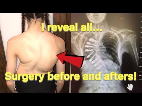 La spina dorsale avanzante scoliosis