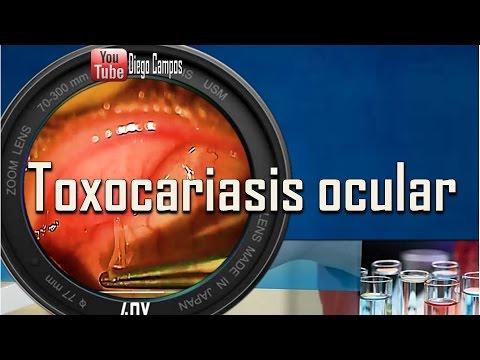 อาการ Giardia ในวิดีโอเด็ก