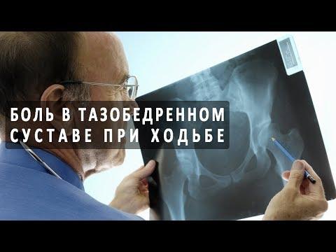 Остеохондроз плечевого сустава снять боль
