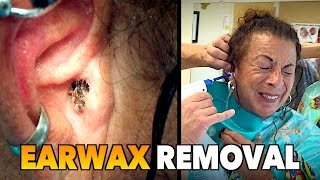 "MASSIVE EARWAX REMOVAL! | Dr. Paul (feat. Maiya ""My Wife"")"
