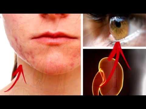 Crianças de diagnóstica de dermatite de atopic aproximadamente um ano