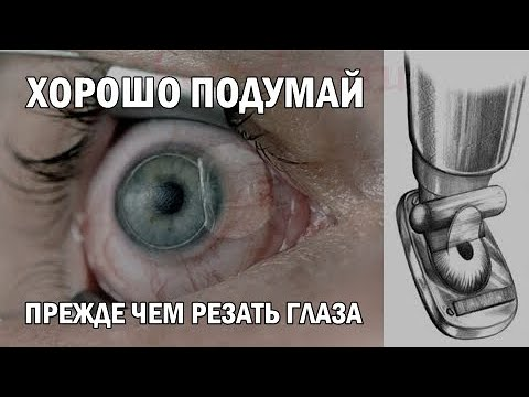 Почему нельзя делать операцию на глазах? \ Лазерная коррекция зрения