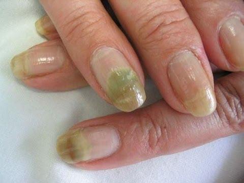 Oflomil el barniz del hongo de las uñas el precio harkov