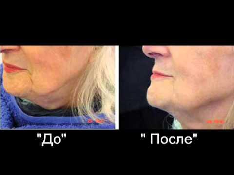 Как быстро убрать мимические морщины у глаз