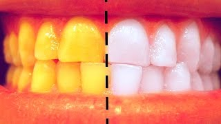 How To Whiten Teeth at Home in 3 Minutes - SIMPLE Life hack