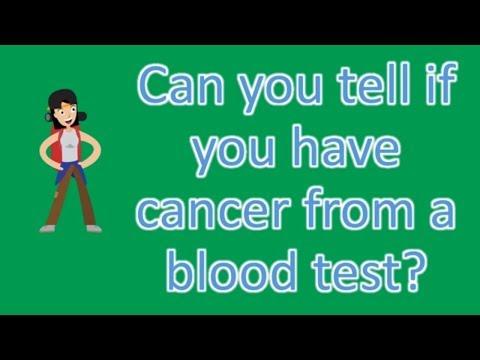 Papillary thyroid cancer death rate