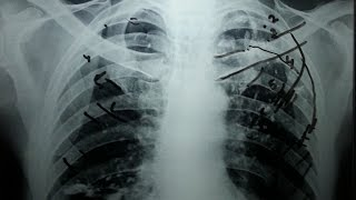 How to count Ribs on Chest X Ray? In 5 minutes!