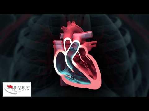 Grade 3 diritti di ipertensione