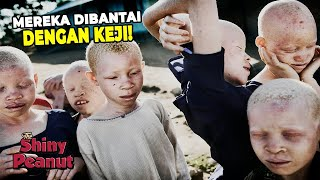 Cuma di Afrika! Demi Kemampuan Sihir, Suku Albino Diburu Dan Di...