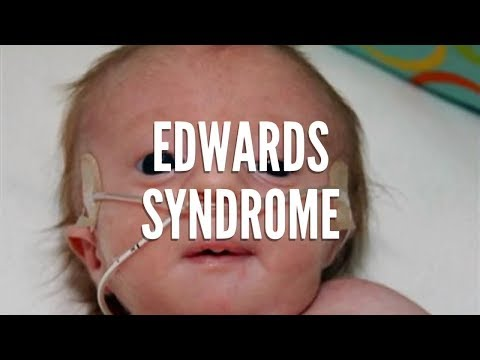What Is Edwards Syndrome?