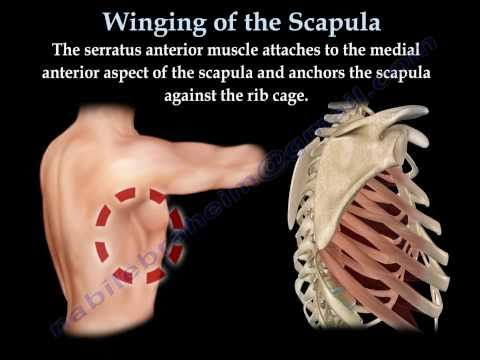 Scapular Winging - Sports - Orthobullets.com