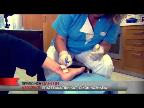Οσφυαλγία στο σακχαρώδη διαβήτη τύπου 1