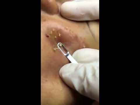 อาการของ Giardia ในตับ