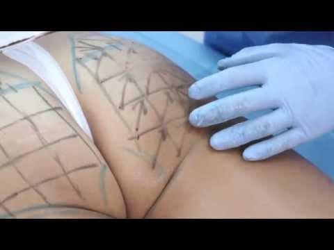 La estancación de la linfa después de la operación en el pecho