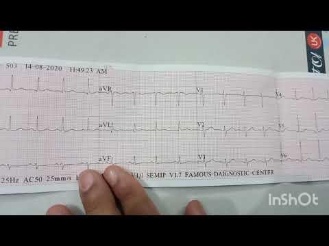 2 fokos magas vérnyomás melyik fogyatékossági csoport