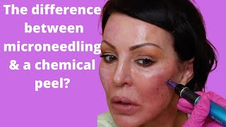What is better microneedling or chemical peel