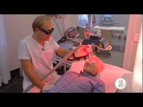 Der Pigmentflecke auf der Person vom Laser die Rezensionen