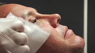 Botox for Men's Crows Feet