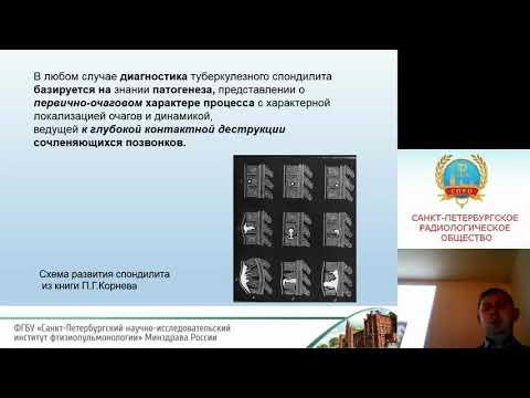 Баулин И.А. Семиотика и дифференциальная диагностика туберкулезного спондилита