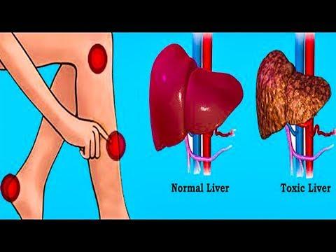 Симптомы простатита и его лечение