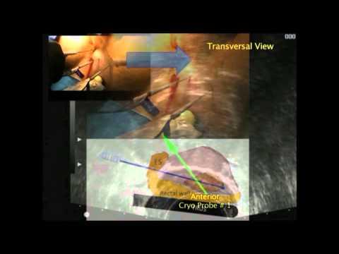 Vibrator für Prostata-Therapie