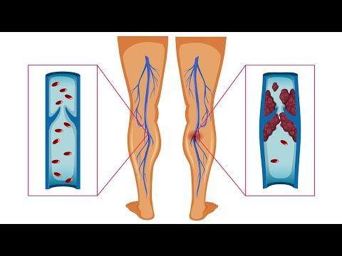 รักษาที่มีประสิทธิภาพของเส้นเลือดขอด