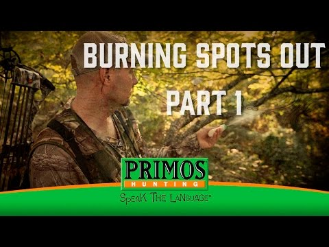 Burning Spots Out Part 1 video thumbnail