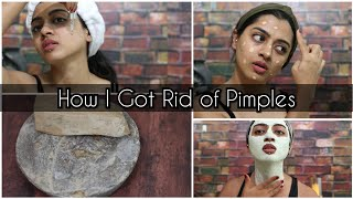 5 Good Habits of People Who got Rid of Acne| SuperWowStyle Prachi