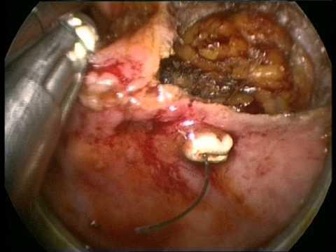 Leczenie ishiorektalnogo paraproctitis