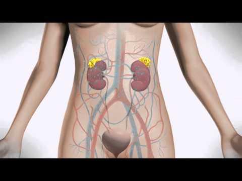 Jak zwiększyć guzki piersi