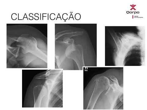 Injecții pentru durere în articulația picioarelor