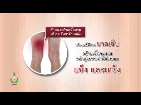 พยาธิกำเนิดของ thrombophlebitis เฉียบพลัน