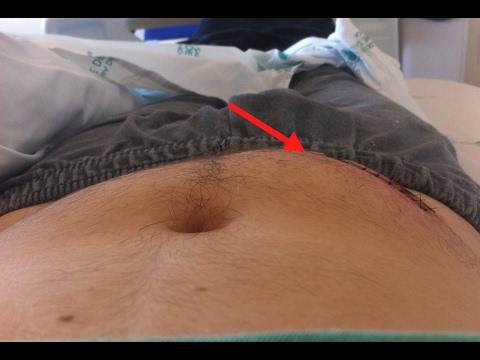 De insulina para a cicatrização de feridas