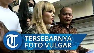 Foto Vulgarnya Disebar, Dinar Candy Lapor Polisi