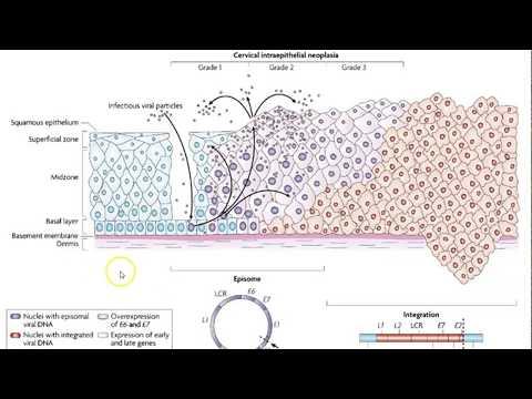 Paraziti si tratament alergii