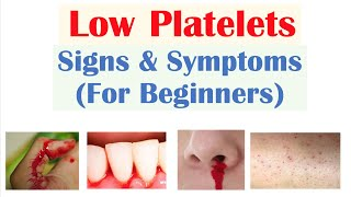 Low Platelets: Signs & Symptoms (Basics for Beginners)