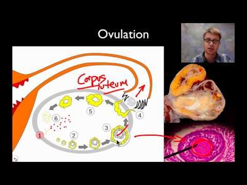 Calcificazioni nel parenchima della prostata